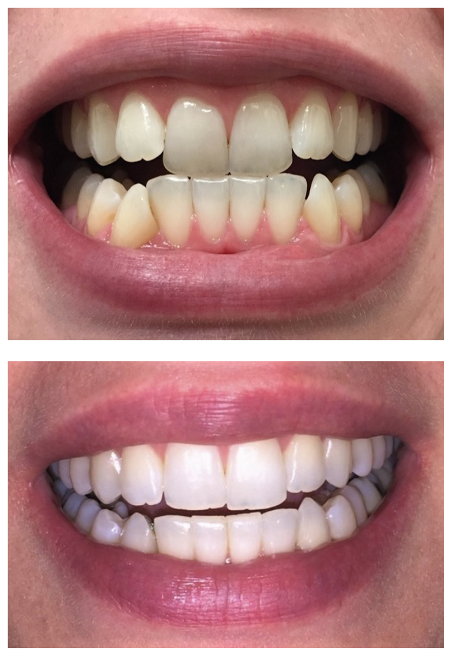 Before and after after using six month smiles clear aligners.
