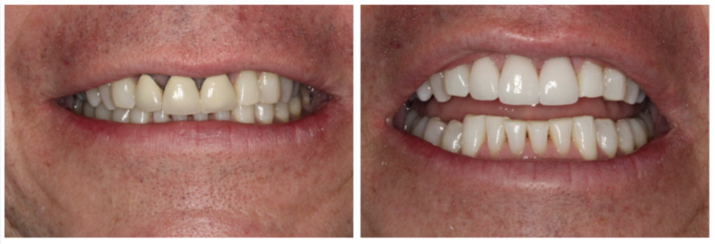Before and after from restorative dentistry services at South Shore Dentistry in South Weymouth, MA.